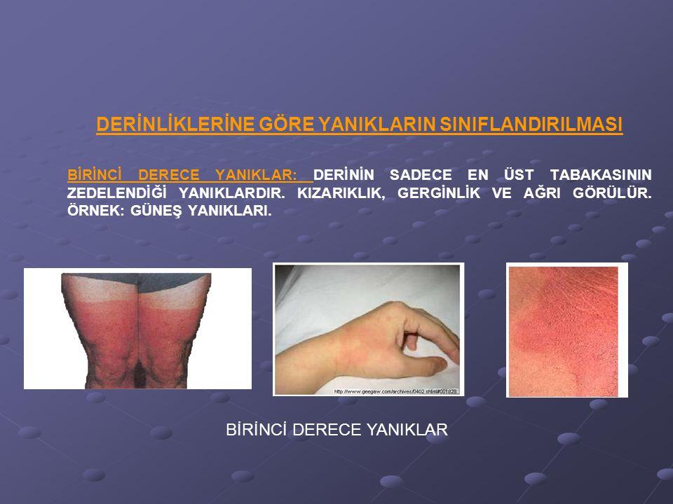 3.DERECE YANIKLAR3.