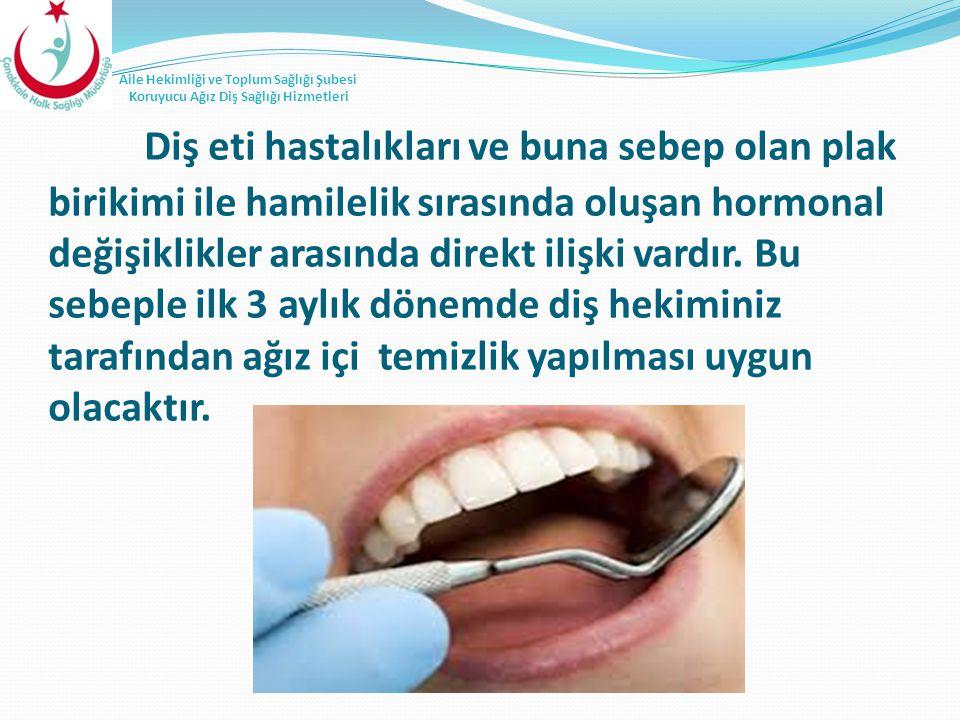 Diş eti hastalıkları ve buna sebep olan plak birikimi ile hamilelik sırasında oluşan hormonal değişiklikler arasında direkt ilişki vardır.