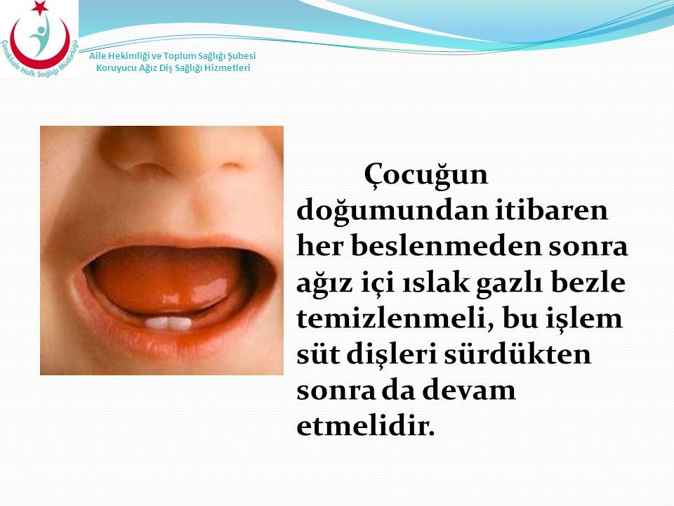 Çocuğun doğumundan itibaren her beslenmeden sonra ağız içi ıslak gazlı bezle temizlenmeli, bu işlem süt dişleri sürdükten sonra da devam etmelidir.