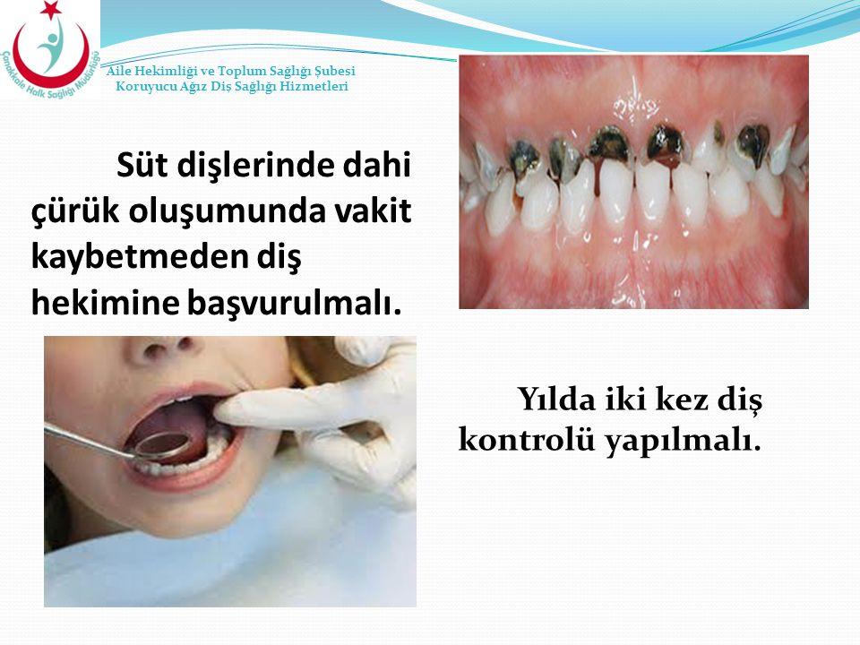 Süt dişlerinde dahi çürük oluşumunda vakit kaybetmeden diş hekimine başvurulmalı. Yılda iki kez diş kontrolü yapılmalı. Aile Hekimliği ve Toplum Sağlı