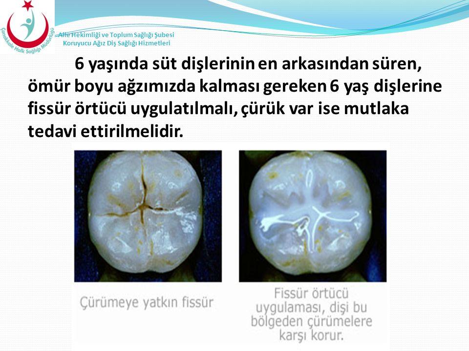 6 yaşında süt dişlerinin en arkasından süren, ömür boyu ağzımızda kalması gereken 6 yaş dişlerine fissür örtücü uygulatılmalı, çürük var ise mutlaka tedavi ettirilmelidir.