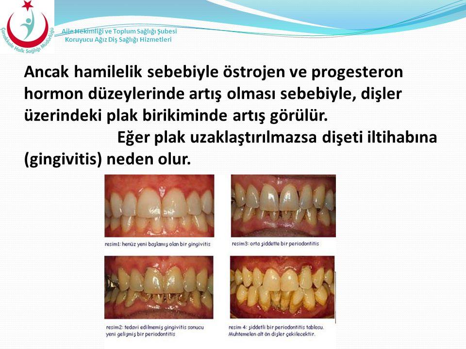 Ancak hamilelik sebebiyle östrojen ve progesteron hormon düzeylerinde artış olması sebebiyle, dişler üzerindeki plak birikiminde artış görülür.