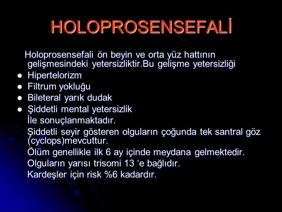 HOLOPROSENSEFALİ Holoprosensefali ön beyin ve orta yüz hattının gelişmesindeki yetersizliktir.Bu gelişme yetersizliği Holoprosensefali ön beyin ve ort