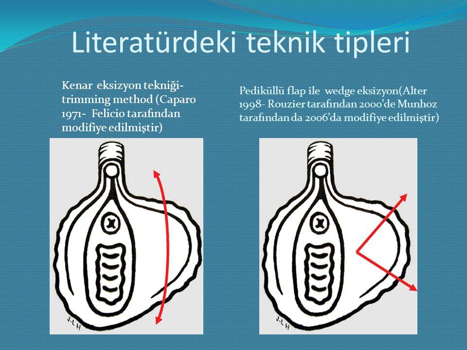 Literatürdeki teknik tipleri Pediküllü flap ile wedge eksizyon(Alter 1998- Rouzier tarafından 2000'de Munhoz tarafından da 2006'da modifiye edilmiştir