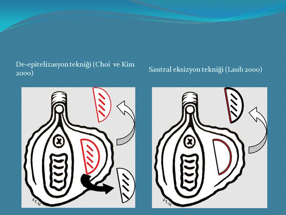 De-epitelizasyon tekniği (Choi ve Kim 2000) Sant ral eksizyon tekniği (Laub 2000)