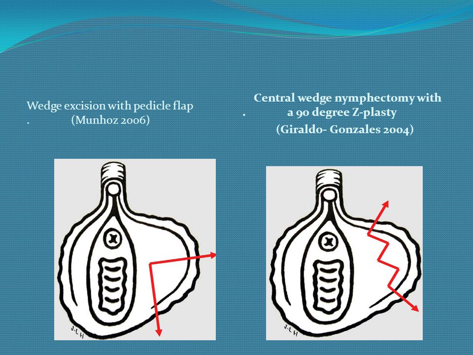 Wedge excision with pedicle flap. (Munhoz 2006) Central wedge nymphectomy with. a 90 degree Z-plasty (Giraldo- Gonzales 2004)