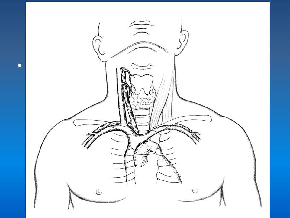 USG ile girim-TEKNİK Prob transvers tutulduğunda; Juguler vende; daha inferior ve lateralden girişim sağlanır. – Bu tünelli kateterlerde açılanmayı ve