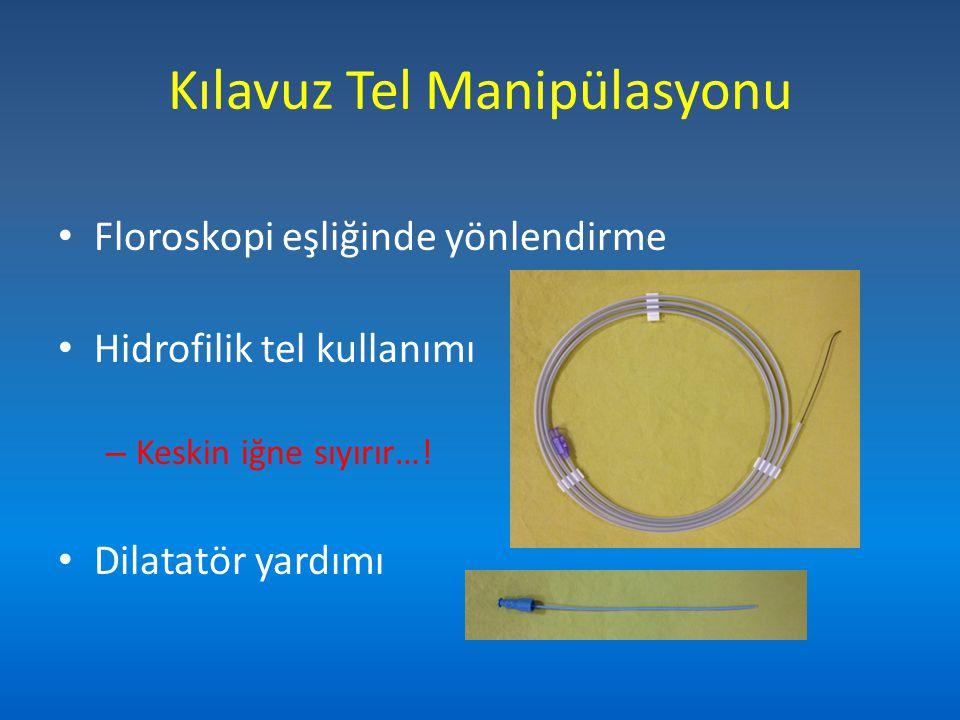 Floroskopi eşliğinde yönlendirme Hidrofilik tel kullanımı – Keskin iğne sıyırır…! Dilatatör yardımı