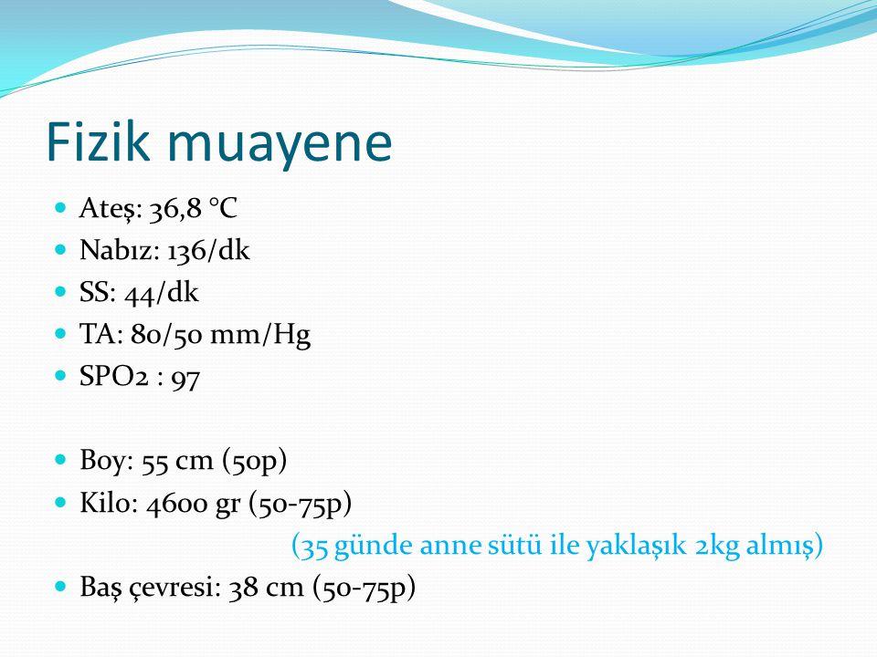 Fizik muayene Ateş: 36,8 °C Nabız: 136/dk SS: 44/dk TA: 80/50 mm/Hg SPO2 : 97 Boy: 55 cm (50p) Kilo: 4600 gr (50-75p) (35 günde anne sütü ile yaklaşık 2kg almış) Baş çevresi: 38 cm (50-75p)