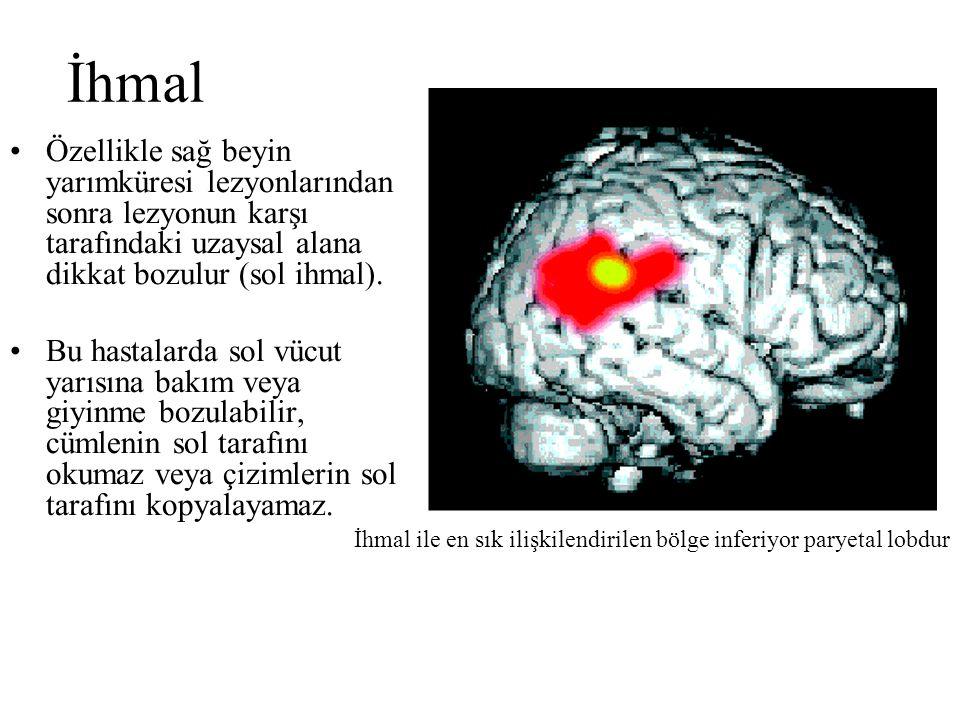 Özellikle sağ beyin yarımküresi lezyonlarından sonra lezyonun karşı tarafındaki uzaysal alana dikkat bozulur (sol ihmal). Bu hastalarda sol vücut yarı
