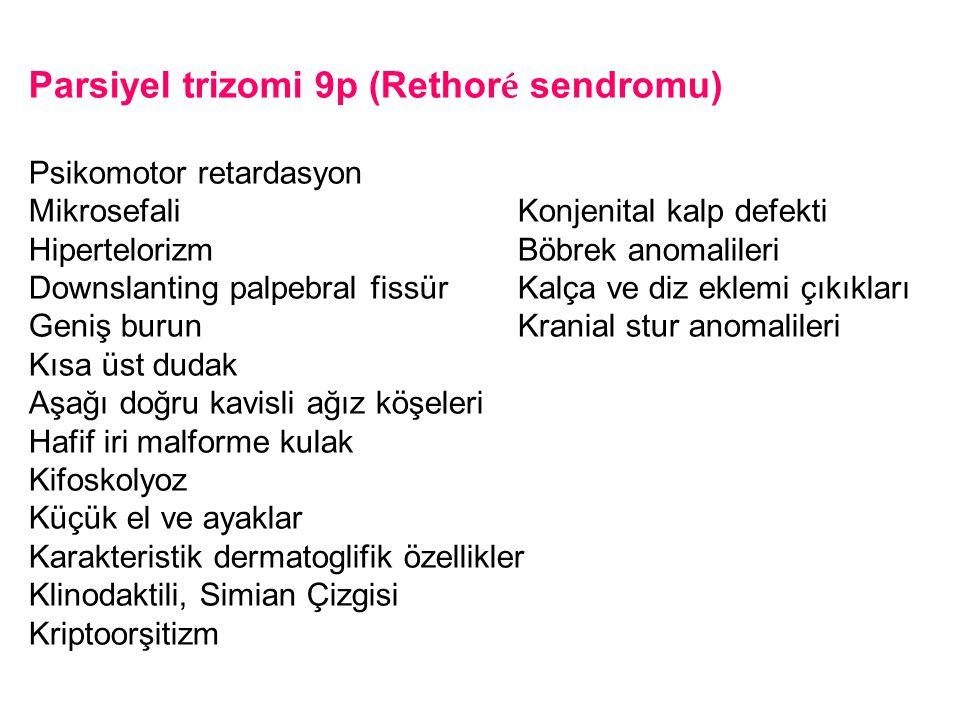 Parsiyel trizomi 9p (Rethor é sendromu) Psikomotor retardasyon Mikrosefali Konjenital kalp defekti Hipertelorizm Böbrek anomalileri Downslanting palpe
