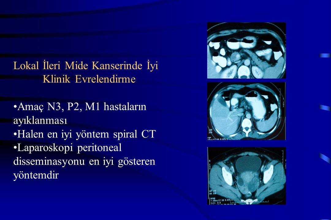 Lokal İleri Mide Kanserinde İyi Klinik Evrelendirme Amaç N3, P2, M1 hastaların ayıklanması Halen en iyi yöntem spiral CT Laparoskopi peritoneal dissem