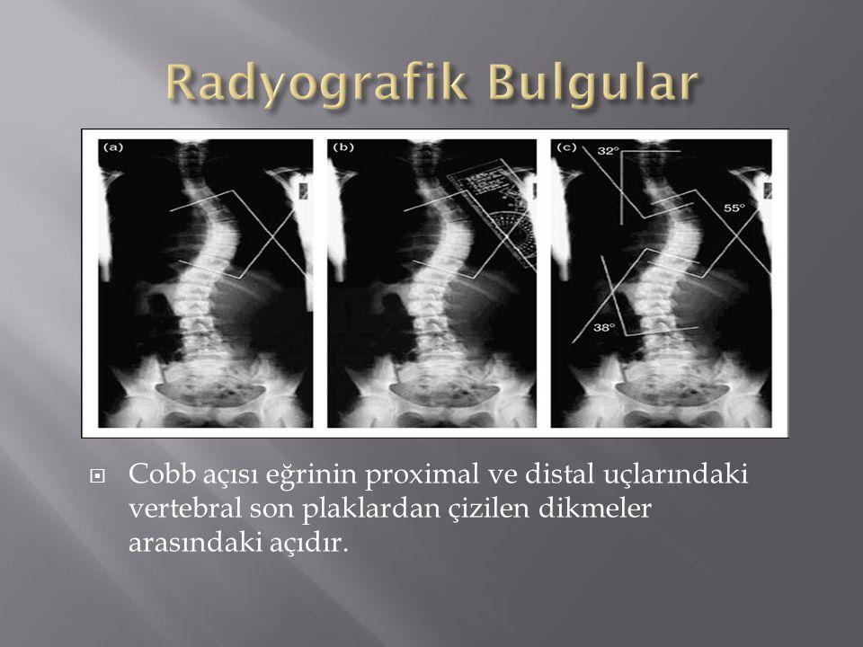  Cobb açısı eğrinin proximal ve distal uçlarındaki vertebral son plaklardan çizilen dikmeler arasındaki açıdır.