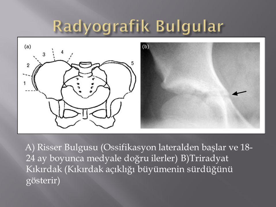 A) Risser Bulgusu (Ossifikasyon lateralden başlar ve 18- 24 ay boyunca medyale doğru ilerler) B)Triradyat Kıkırdak (Kıkırdak açıklığı büyümenin sürdüğ