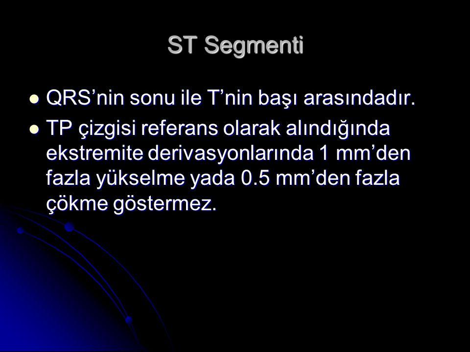 ST Segmenti QRS'nin sonu ile T'nin başı arasındadır. QRS'nin sonu ile T'nin başı arasındadır. TP çizgisi referans olarak alındığında ekstremite deriva