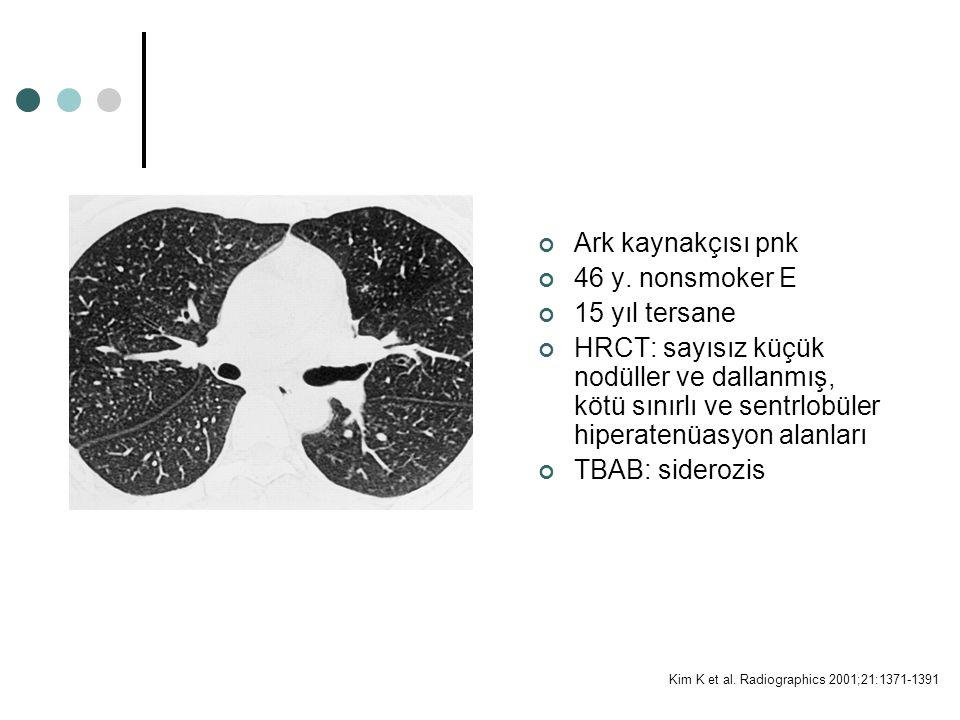 Kim K et al. Radiographics 2001;21:1371-1391 Ark kaynakçısı pnk 46 y. nonsmoker E 15 yıl tersane HRCT: sayısız küçük nodüller ve dallanmış, kötü sınır