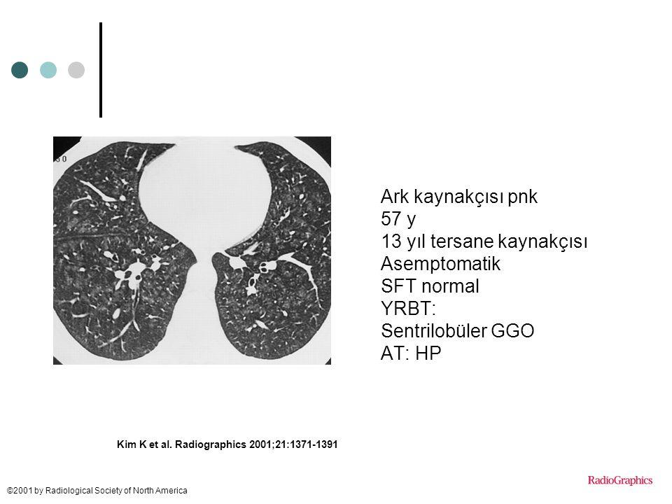 Kim K et al. Radiographics 2001;21:1371-1391 ©2001 by Radiological Society of North America Ark kaynakçısı pnk 57 y 13 yıl tersane kaynakçısı Asemptom