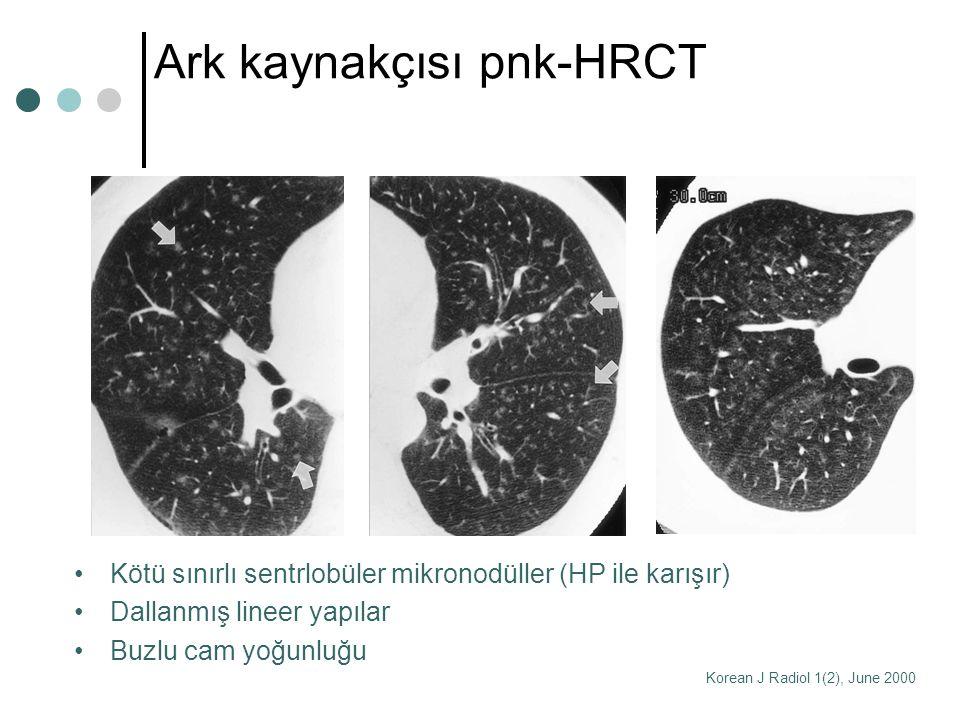 Ark kaynakçısı pnk-HRCT Kötü sınırlı sentrlobüler mikronodüller (HP ile karışır) Dallanmış lineer yapılar Buzlu cam yoğunluğu Korean J Radiol 1(2), Ju