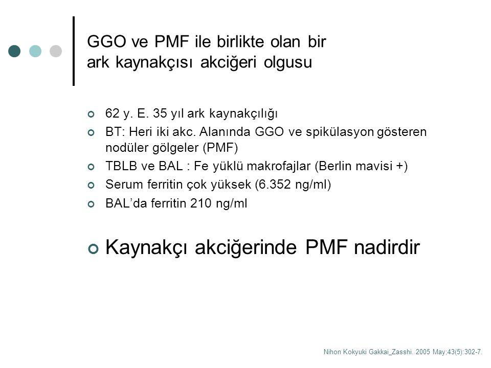 GGO ve PMF ile birlikte olan bir ark kaynakçısı akciğeri olgusu 62 y. E. 35 yıl ark kaynakçılığı BT: Heri iki akc. Alanında GGO ve spikülasyon göstere