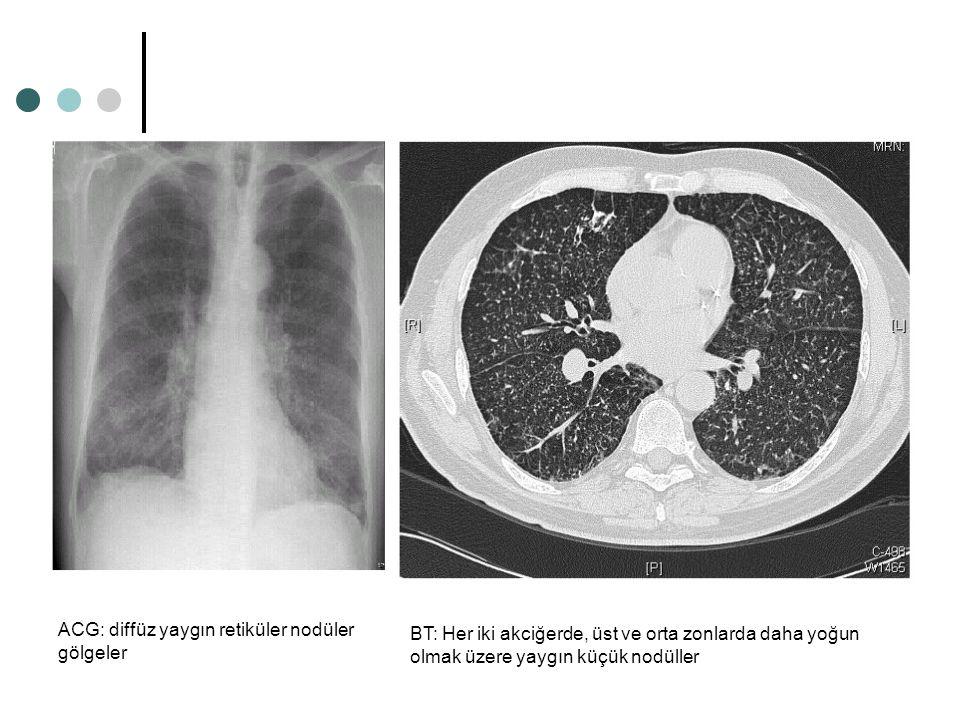 ACG: diffüz yaygın retiküler nodüler gölgeler BT: Her iki akciğerde, üst ve orta zonlarda daha yoğun olmak üzere yaygın küçük nodüller