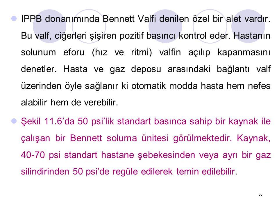 36 IPPB donanımında Bennett Valfi denilen özel bir alet vardır.