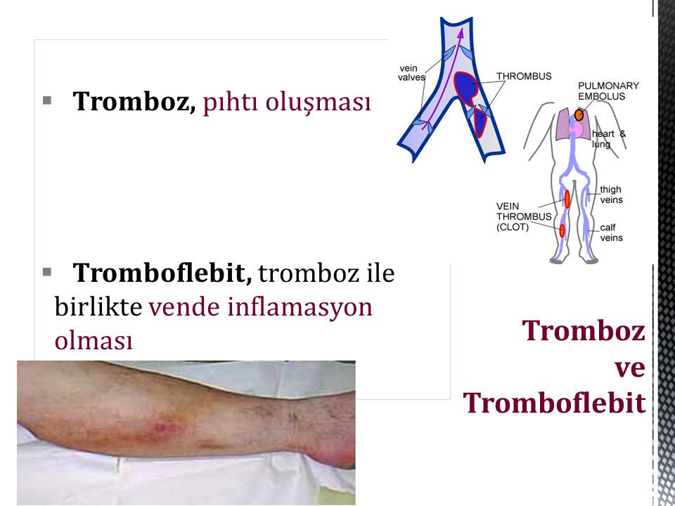  Tromboz, pıhtı oluşması  Tromboflebit, tromboz ile birlikte vende inflamasyon olması Tromboz ve Tromboflebit