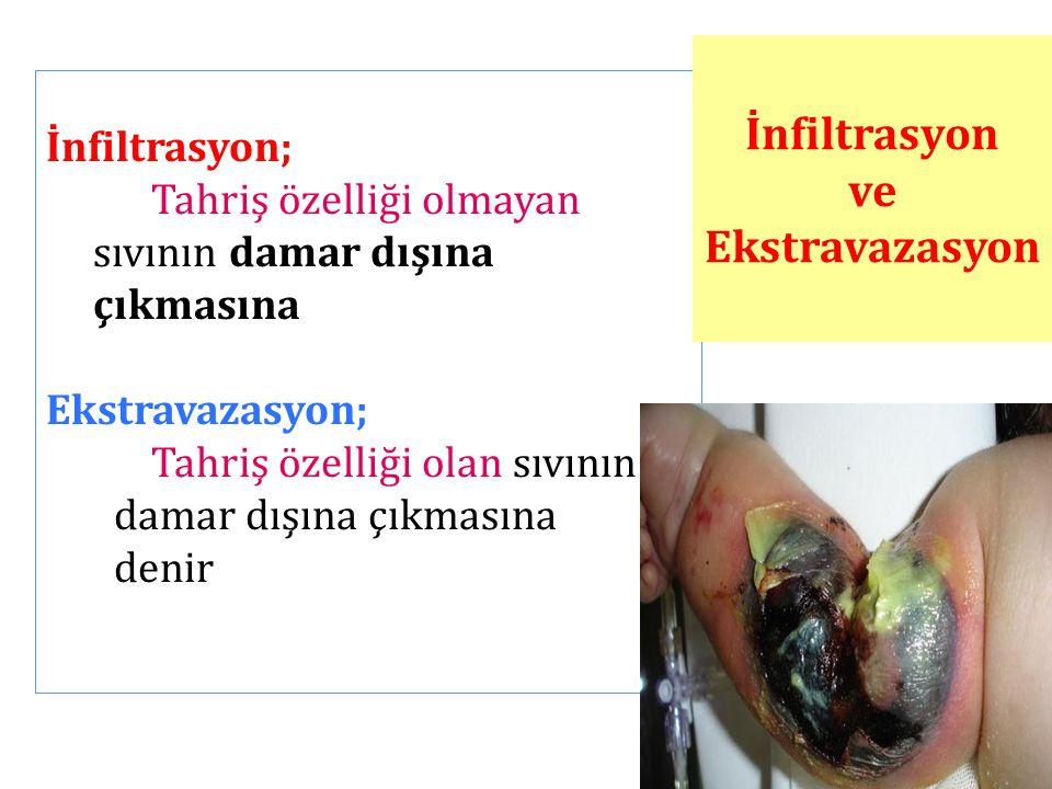 İnfiltrasyon; Tahriş özelliği olmayan sıvının damar dışına çıkmasına Ekstravazasyon; Tahriş özelliği olan sıvının damar dışına çıkmasına denir İnfiltr