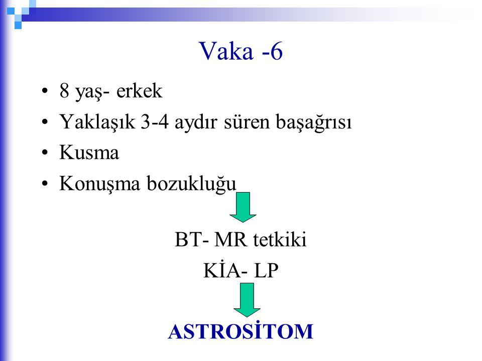 Vaka -6 8 yaş- erkek Yaklaşık 3-4 aydır süren başağrısı Kusma Konuşma bozukluğu BT- MR tetkiki KİA- LP ASTROSİTOM
