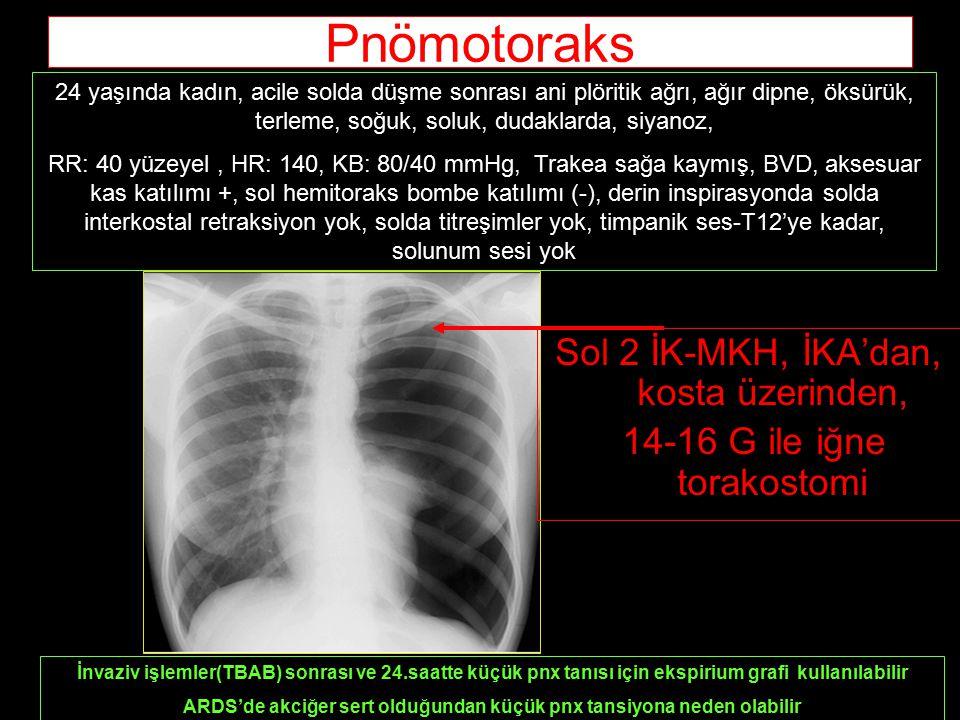 Sol 2 İK-MKH, İKA'dan, kosta üzerinden, 14-16 G ile iğne torakostomi 24 yaşında kadın, acile solda düşme sonrası ani plöritik ağrı, ağır dipne, öksürük, terleme, soğuk, soluk, dudaklarda, siyanoz, RR: 40 yüzeyel, HR: 140, KB: 80/40 mmHg, Trakea sağa kaymış, BVD, aksesuar kas katılımı +, sol hemitoraks bombe katılımı (-), derin inspirasyonda solda interkostal retraksiyon yok, solda titreşimler yok, timpanik ses-T12'ye kadar, solunum sesi yok Pnömotoraks İnvaziv işlemler(TBAB) sonrası ve 24.saatte küçük pnx tanısı için ekspirium grafi kullanılabilir ARDS'de akciğer sert olduğundan küçük pnx tansiyona neden olabilir