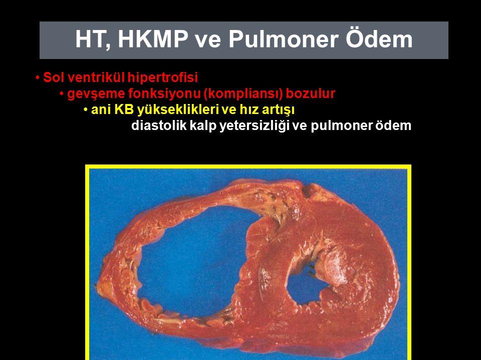 HT, HKMP ve Pulmoner Ödem Sol ventrikül hipertrofisi gevşeme fonksiyonu (kompliansı) bozulur ani KB yükseklikleri ve hız artışı diastolik kalp yetersizliği ve pulmoner ödem