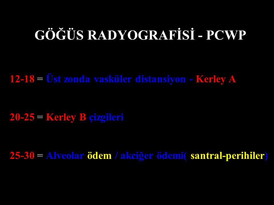 GÖĞÜS RADYOGRAFİSİ - PCWP 12-18 = Üst zonda vasküler distansiyon - Kerley A 20-25 = Kerley B çizgileri 25-30 = Alveolar ödem / akciğer ödemi( santral-perihiler)