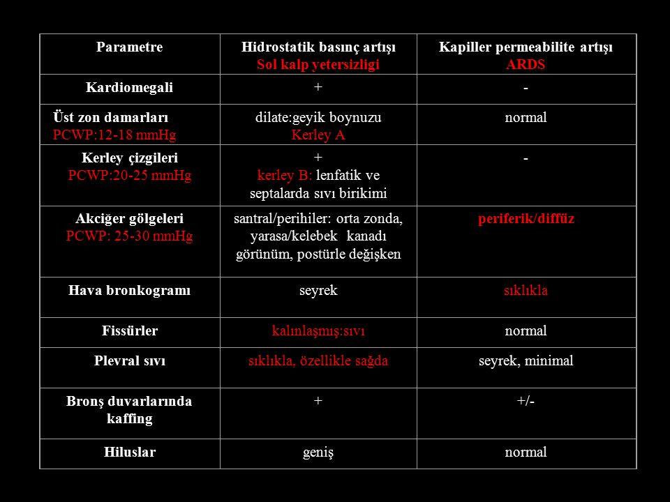 ParametreHidrostatik basınç artışı Sol kalp yetersizligi Kapiller permeabilite artışı ARDS Kardiomegali+- Üst zon damarları PCWP:12-18 mmHg dilate:geyik boynuzu Kerley A normal Kerley çizgileri PCWP:20-25 mmHg + kerley B: lenfatik ve septalarda sıvı birikimi - Akciğer gölgeleri PCWP: 25-30 mmHg santral/perihiler: orta zonda, yarasa/kelebek kanadı görünüm, postürle değişken periferik/diffüz Hava bronkogramıseyreksıklıkla Fissürlerkalınlaşmış:sıvınormal Plevral sıvısıklıkla, özellikle sağdaseyrek, minimal Bronş duvarlarında kaffing ++/- Hiluslargenişnormal