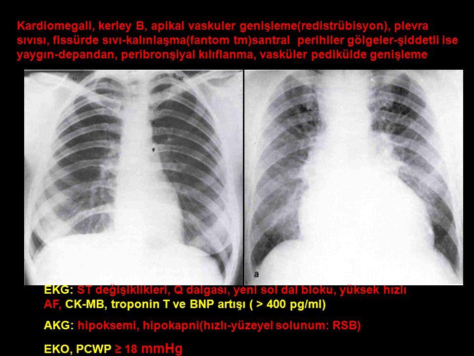 Kardiomegali, kerley B, apikal vaskuler genişleme(redistrübisyon), plevra sıvısı, fissürde sıvı-kalınlaşma(fantom tm)santral perihiler gölgeler-şiddetli ise yaygın-depandan, peribronşiyal kılıflanma, vasküler pedikülde genişleme EKG: ST değişiklikleri, Q dalgası, yeni sol dal bloku, yüksek hızlı AF, CK-MB, troponin T ve BNP artışı ( > 400 pg/ml) AKG: hipoksemi, hipokapni(hızlı-yüzeyel solunum: RSB) EKO, PCWP ≥ 18 mmHg