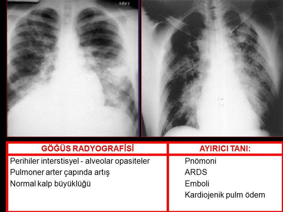 GÖĞÜS RADYOGRAFİSİAYIRICI TANI: Perihiler interstisyel - alveolar opasiteler Pulmoner arter çapında artış Normal kalp büyüklüğü Pnömoni ARDS Emboli Kardiojenik pulm ödem