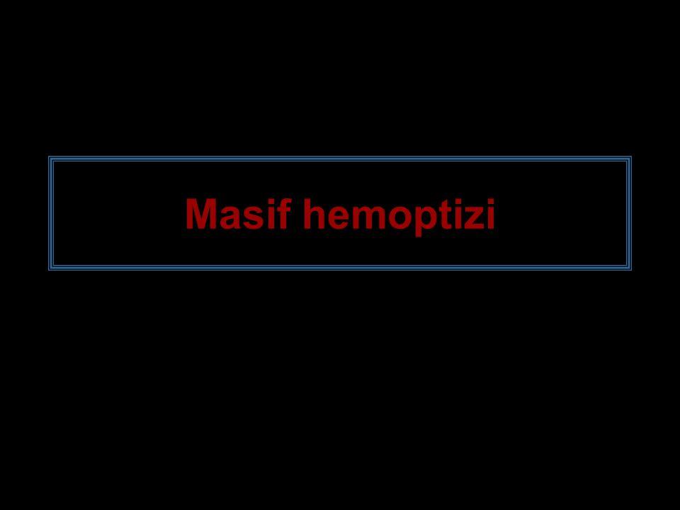 Masif hemoptizi