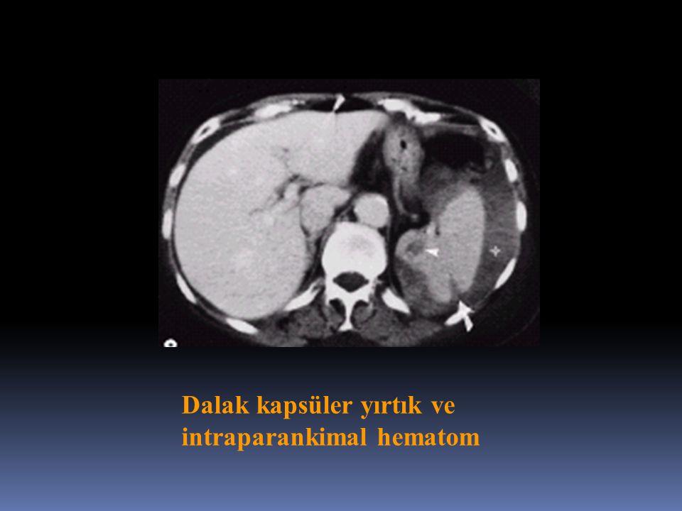 Dalak kapsüler yırtık ve intraparankimal hematom