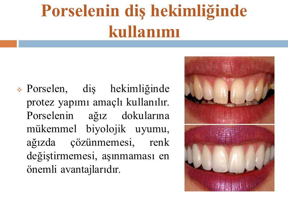 Porselenin diş hekimliğinde kullanımı  Porselen, diş hekimliğinde protez yapımı amaçlı kullanılır. Porselenin ağız dokularına mükemmel biyolojik uyum