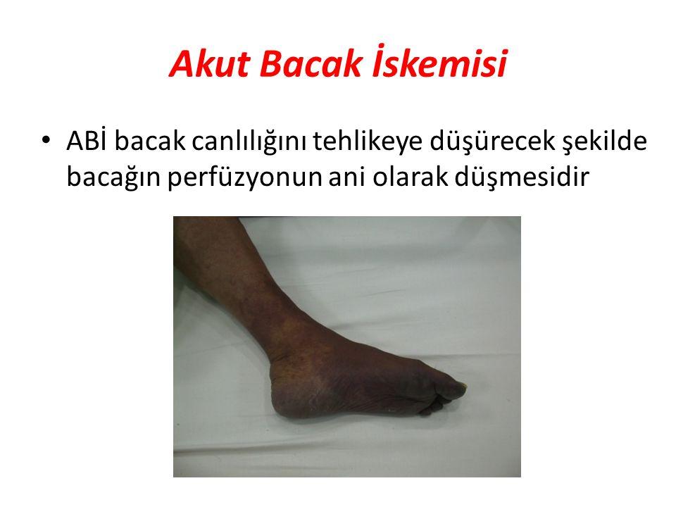 Akut Bacak İskemisi ABİ bacak canlılığını tehlikeye düşürecek şekilde bacağın perfüzyonun ani olarak düşmesidir