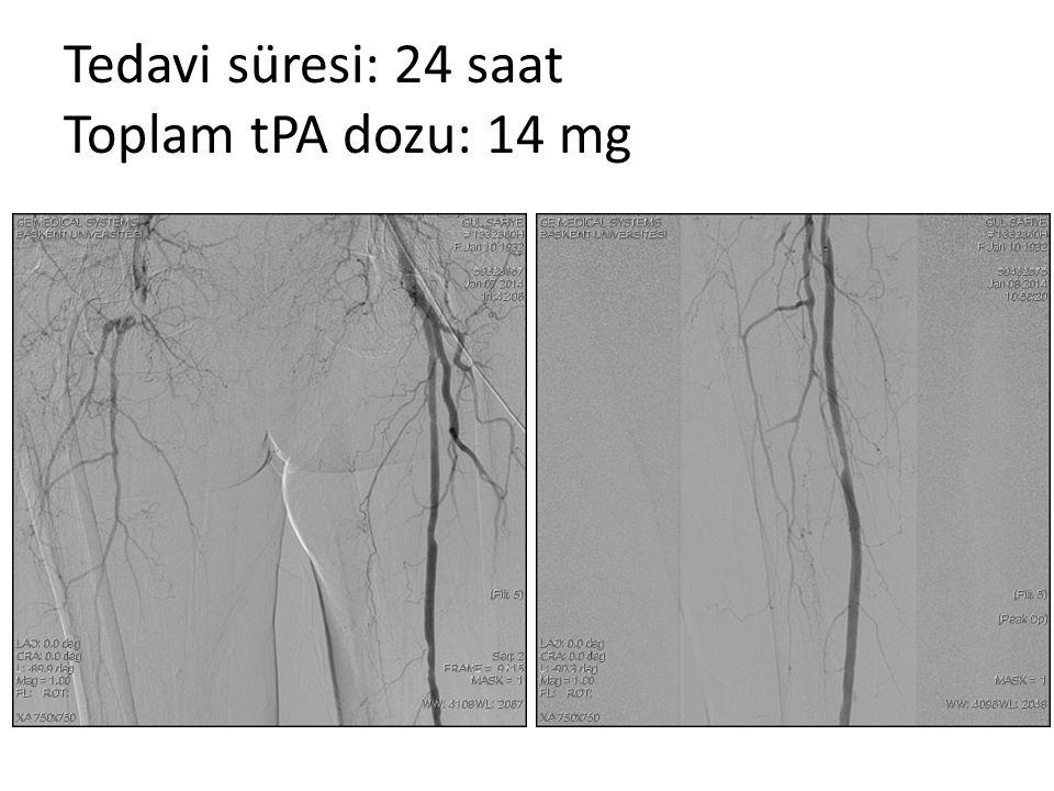 Tedavi süresi: 24 saat Toplam tPA dozu: 14 mg