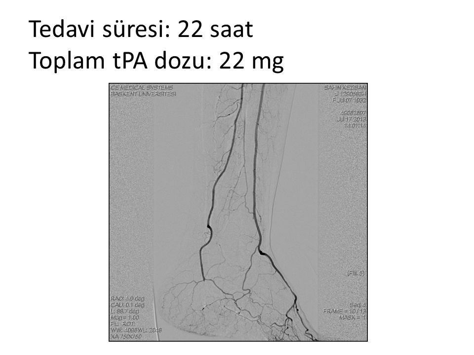 Tedavi süresi: 22 saat Toplam tPA dozu: 22 mg