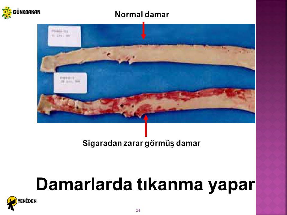 24 Damarlarda tıkanma yapar Sigaradan zarar görmüş damar Normal damar
