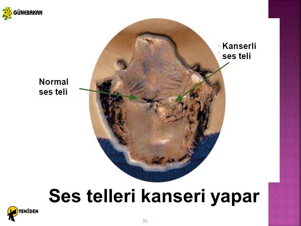 31 Ses telleri kanseri yapar Kanserli ses teli Normal ses teli
