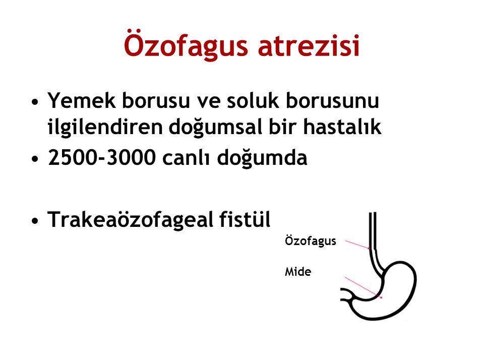 Özofagus atrezisi Yemek borusu ve soluk borusunu ilgilendiren doğumsal bir hastalık 2500-3000 canlı doğumda Trakeaözofageal fistül Özofagus Mide