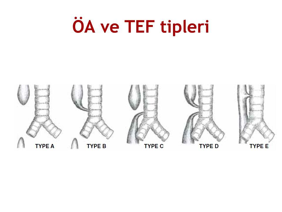 ÖA ve TEF tipleri