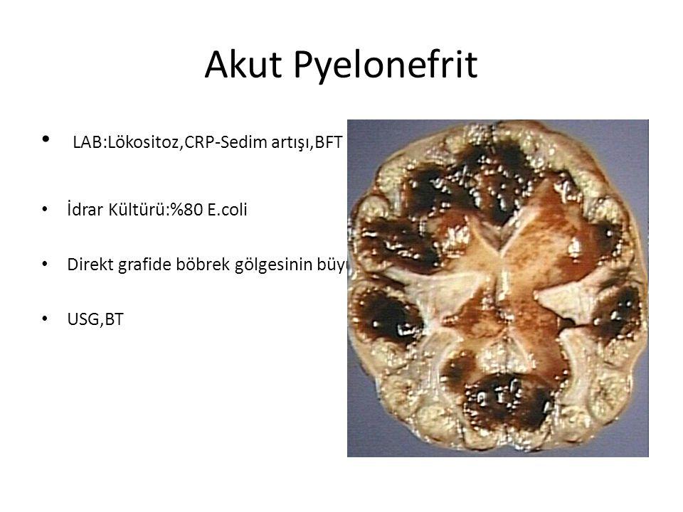 Akut Pyelonefrit LAB:Lökositoz,CRP-Sedim artışı,BFT genelde normal İdrar Kültürü:%80 E.coli Direkt grafide böbrek gölgesinin büyüdüğü,sınırlarının sil