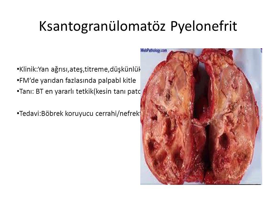 Ksantogranülomatöz Pyelonefrit Klinik:Yan ağrısı,ateş,titreme,düşkünlük FM'de yarıdan fazlasında palpabl kitle Tanı: BT en yararlı tetkik(kesin tanı p