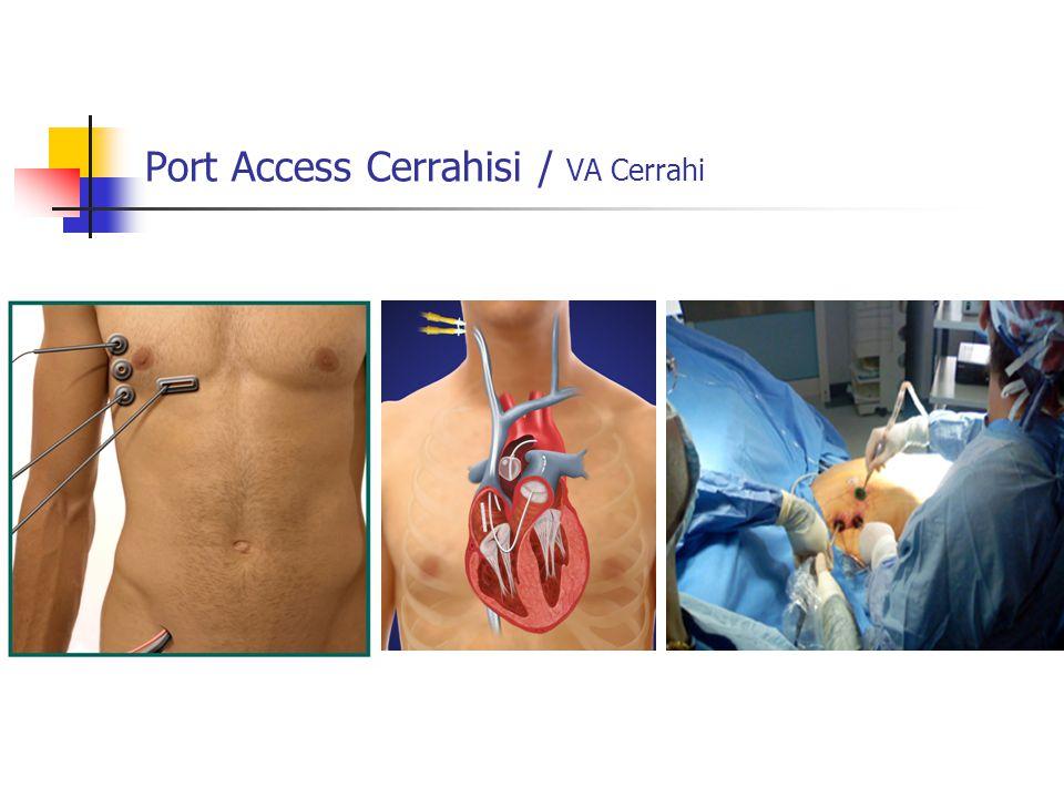 Port Access Cerrahisi / VA Cerrahi