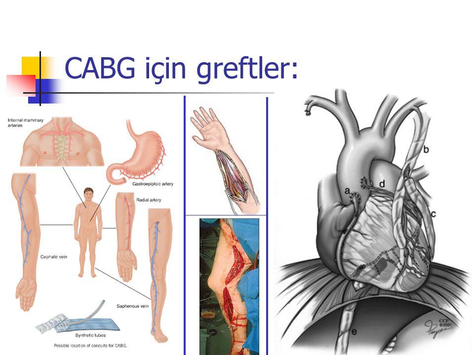 CABG için greftler: