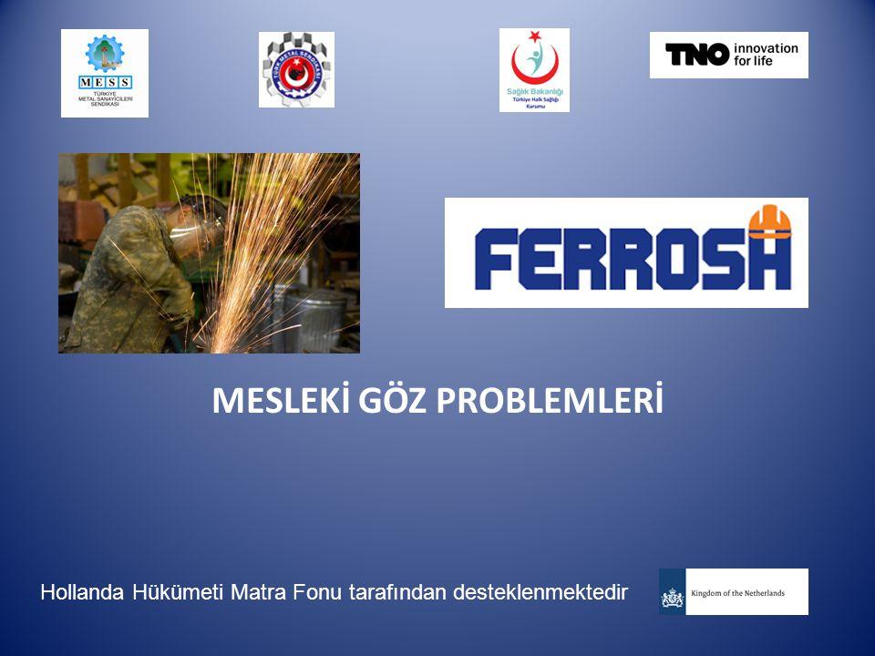 MESLEKİ GÖZ PROBLEMLERİ Hollanda Hükümeti Matra Fonu tarafından desteklenmektedir