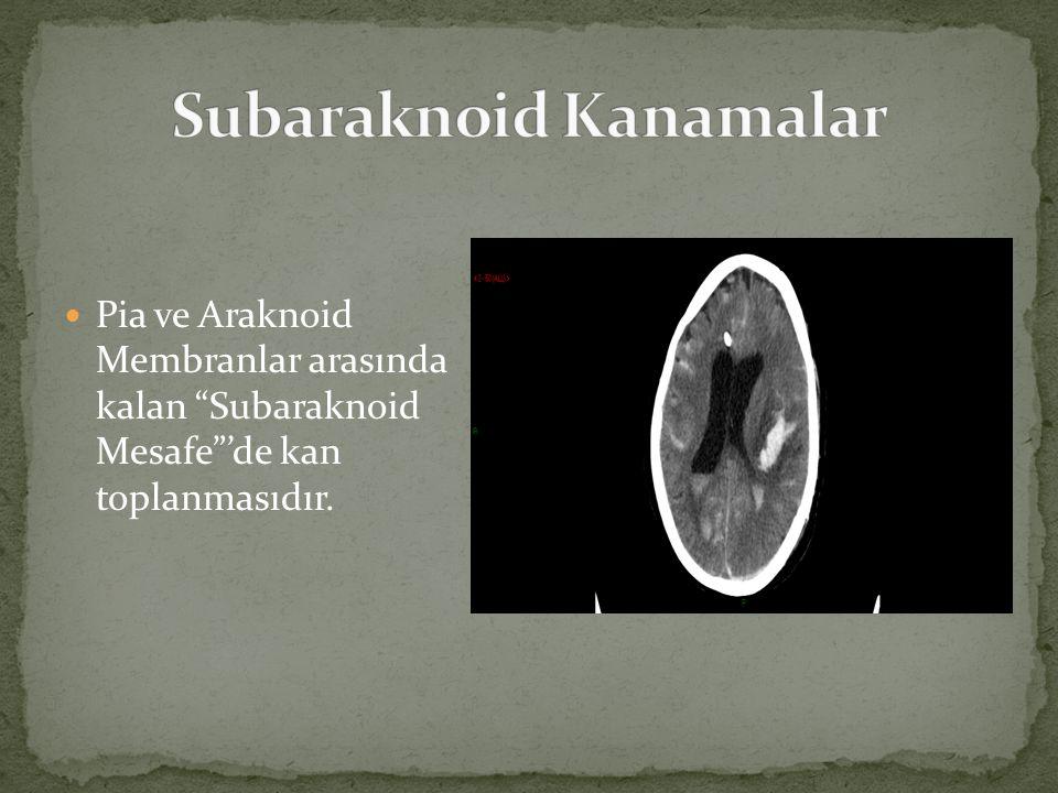 """Pia ve Araknoid Membranlar arasında kalan """"Subaraknoid Mesafe""""'de kan toplanmasıdır."""
